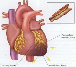 Arteriosclerotic Heart Disease