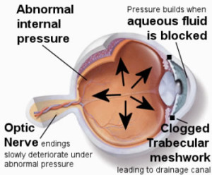 Elevated Intraocular Pressure