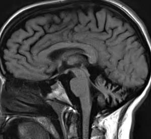 Hereditary Spinal Ataxia
