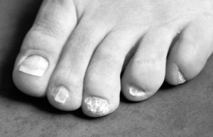 Nail-Patella Syndrome