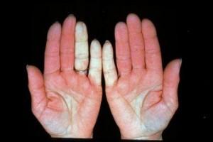 Raynauds Disease