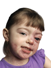Sturge-Weber Syndrome (SWS)