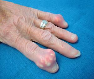 gout arthropathy